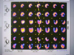 Миокардна перфузионна сцинтиграфия