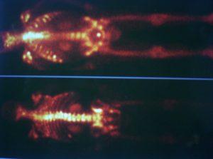 Лечение на болката при костни метастази с Метастрон